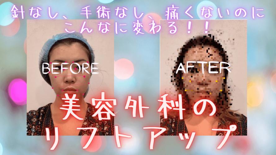 行きつけ美容外科で顔のリフトアップをしたら効果がすごかった!★北秀醫美健康管理診所★【PR記事・割引あり】